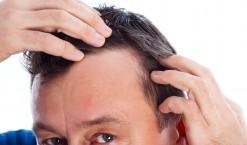 Calvitie solution contre la perte de vos cheveux